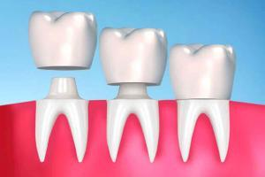 Dental Crowns and Porcelain Crowns in McKinney, TX